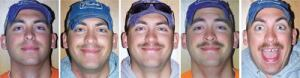 Things get hairy for Matt Fesemyer during the Woodridge (Ill.) Department of Public Works' 2010 Stache for Cash fundraiser. As of mid-November, he and his colleagues had raised $6,500. Photo: Woodridge Department of Public Works