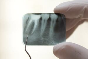 Bioteeth may soon be grown in human jaws from gum tissue.