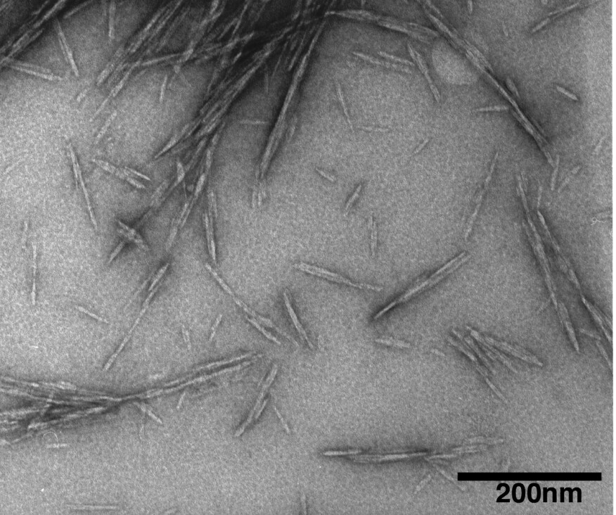 Cellulose nanocrystals shown using a transmission electron microscope.